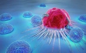 onkologia-laryngologia