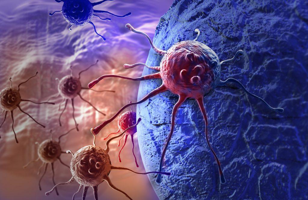 opm-dlaszpitali-nowotwor