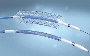 OPM_6_19_stenty-uzywane-podczas-angioplastyki-tetnic-szyjnych