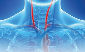 OPM_1_20_systemy-neuroprotekcji-proksymalnej-angioplastyka-tetnic-szyjnych