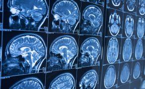 opm-postepowanie-w-udarze-mozgu