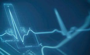 opm-kardiologia-w-czasie-epidemii-covid-19