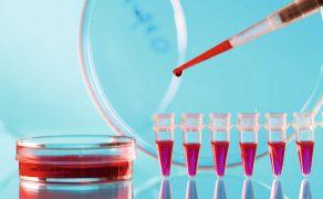opm-szczepionka-na-koronawirusa-badania
