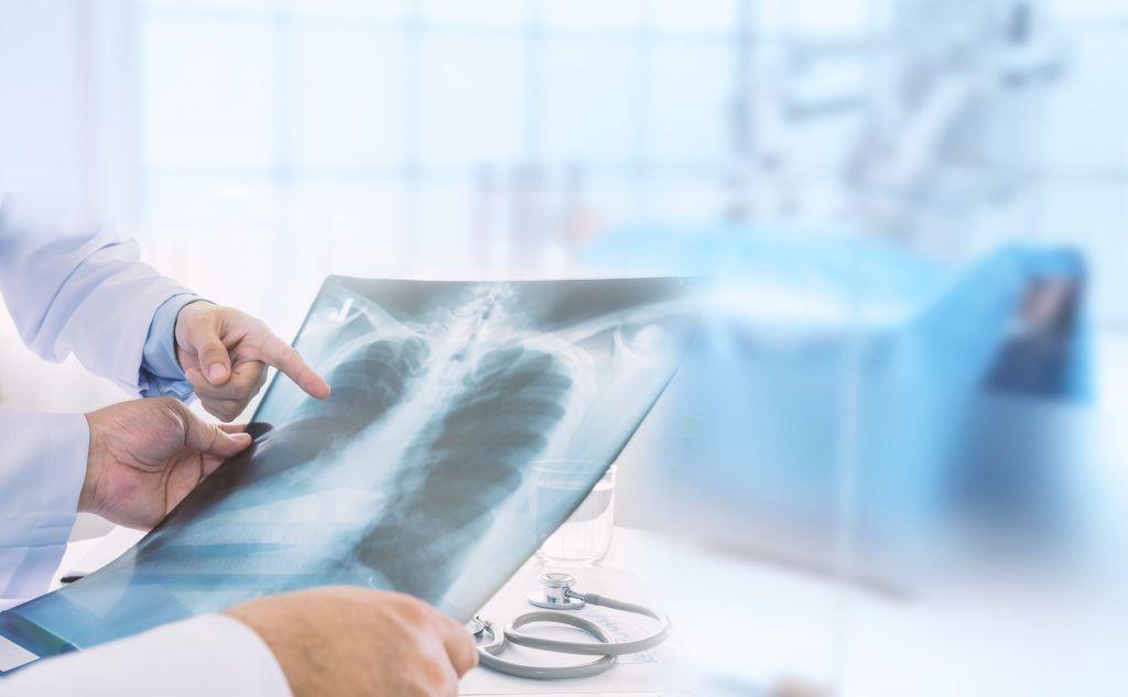 opm-zapadalnosc-na-raka-pluca-powodowana-jakoscia-powietrza