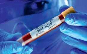 opm-testy-na-koronawirusa-poznan