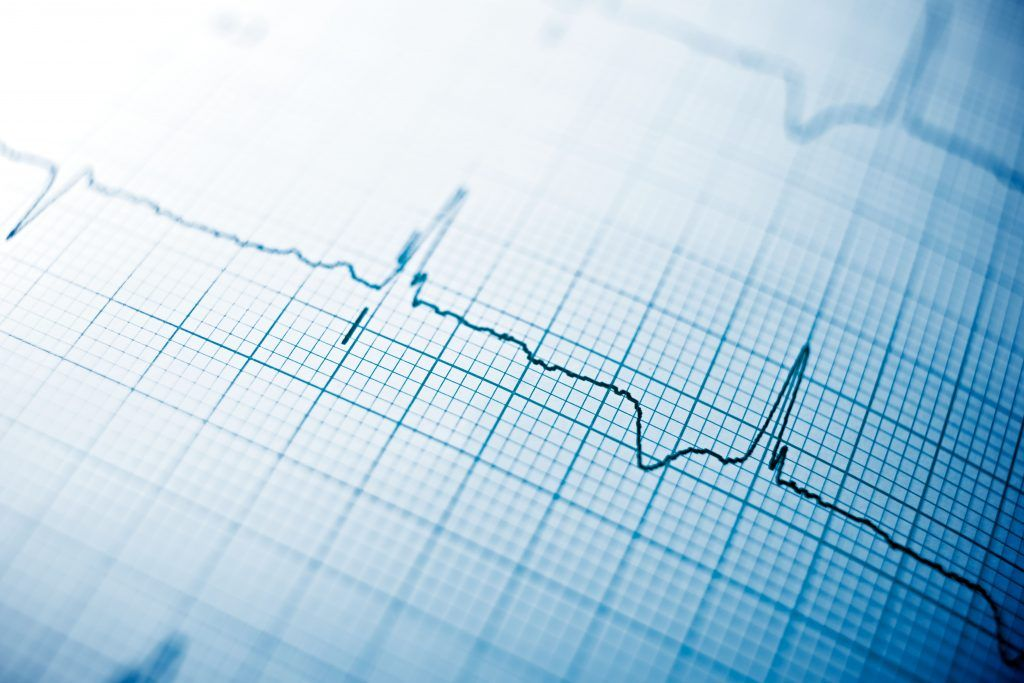 opm-dlaszpitali-implementacja-kardiowertera-defibrylatora