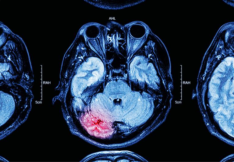 opm-dlaszpitali-covid-udar-mozgu
